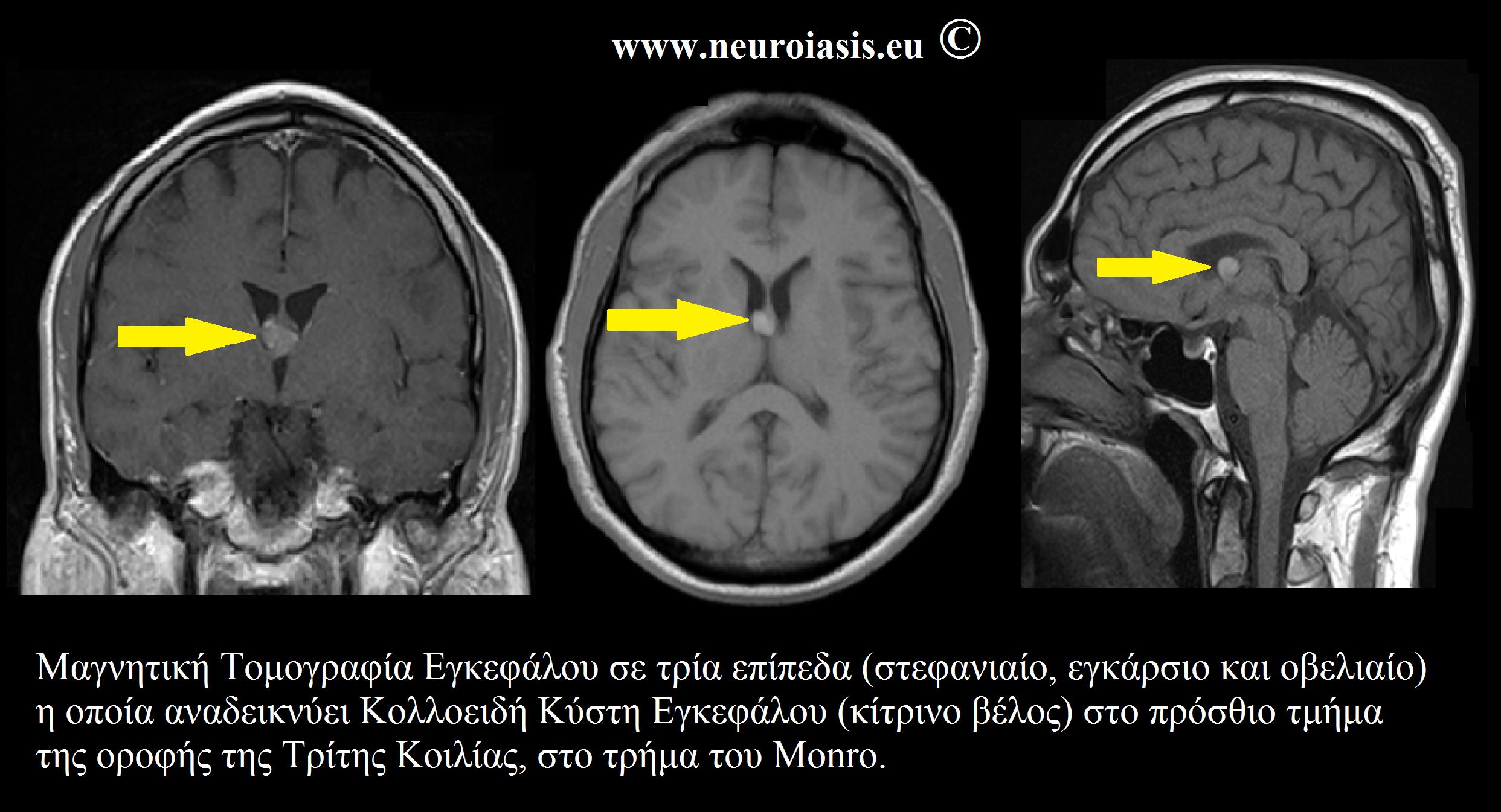κολλοειδής κύστη εγκεφάλου