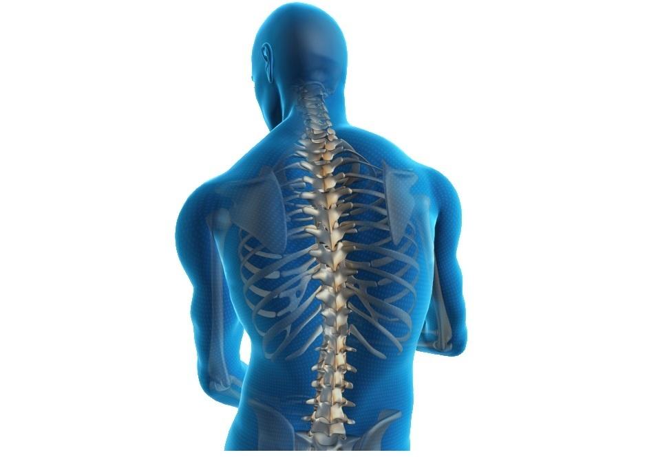 Σπονδυλική Στένωση / Στένωση της Σπονδυλικής Στήλης