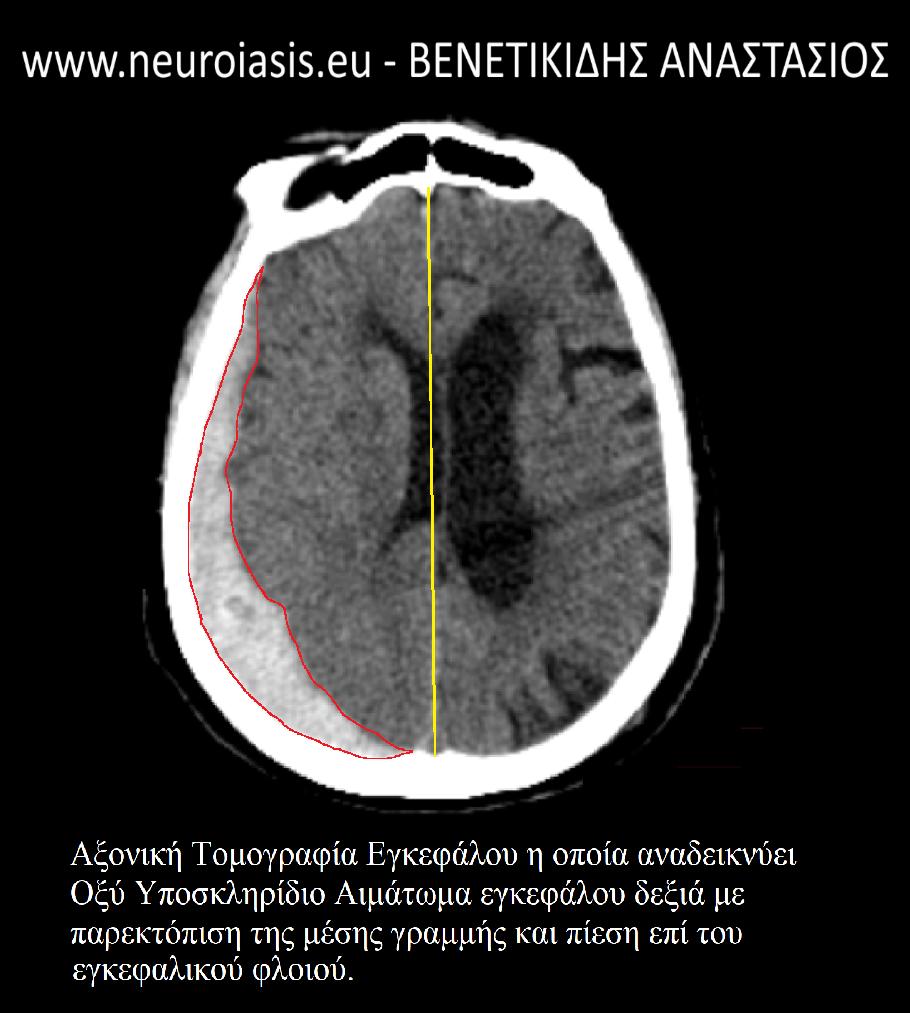 neyroxeiroyrgos-venetikidis-anastasios-pathiseis-egkefalou-oksi-yposkliridio-aimatoma-1