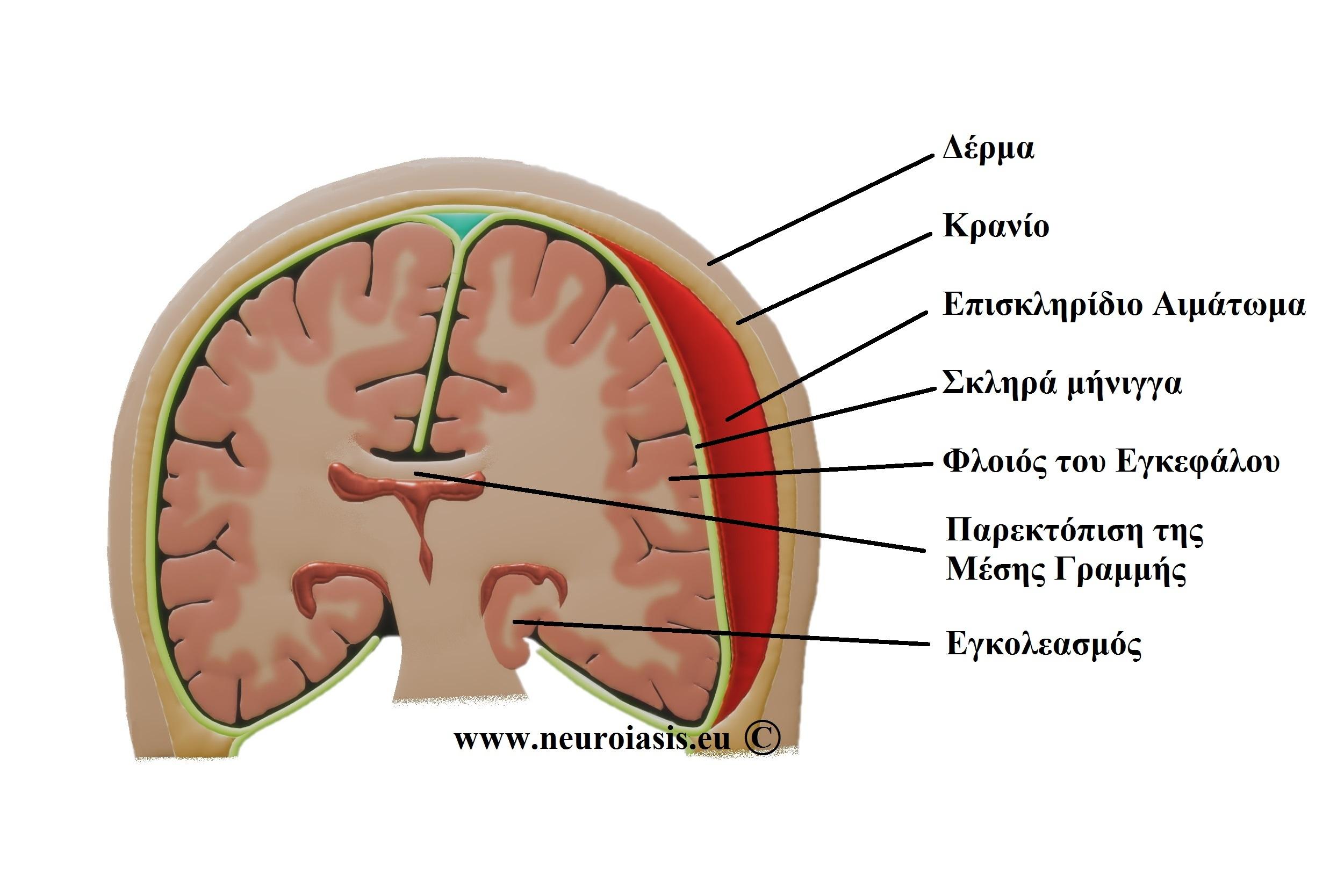 pathiseis-egkefalou-episkliridio-aimatoma
