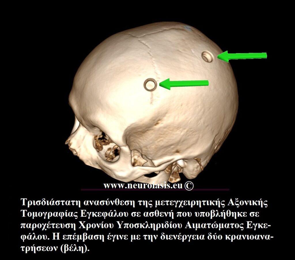 xeiroyrgikes-epembaseis-egkefaloy-kranioanatrisi